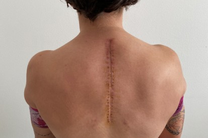 Ana Carrasco: Metallteile im Rücken operativ entfernt