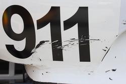 911 detayı
